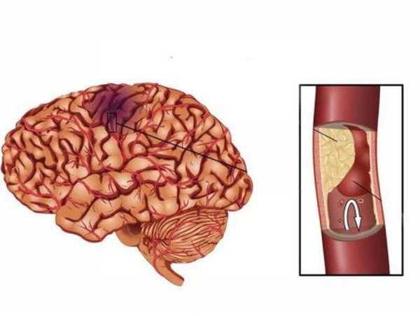 Признаки лакунарного ишемического инсульта, методы диагностики и лечения