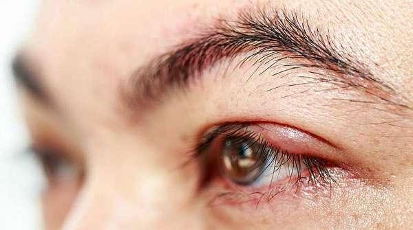 Внутренний ячмень глаза