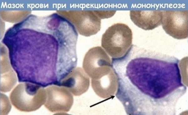 О чем говорит наличие атипичных лимфоцитов в крови, и стоит ли волноваться?