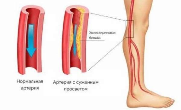 Анализ крови на уровень ЛПВП, показания к назначению, расшифровка