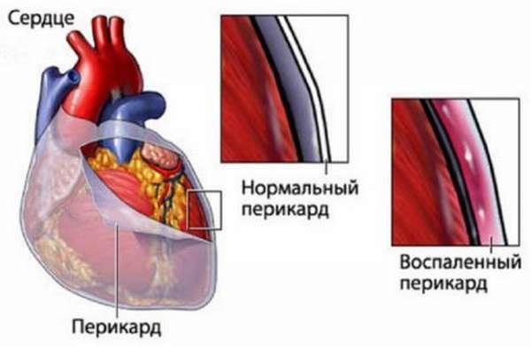 Особенности экссудативного перикардита, классификация и методы лечения