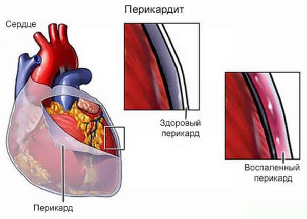 Определение причины, последствий и необходимого лечения, при болях в грудной клетке при кашле