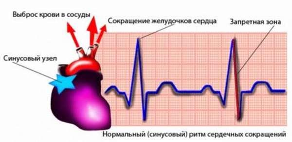 Типы аритмии, как ее вылечить, общая характеристика заболевания