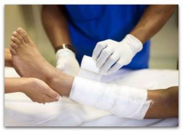 Врач перематывает ногу пациенту