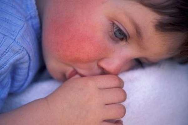 Причины повышения эритроцитов в крови у ребенка: как восстановить показатель?