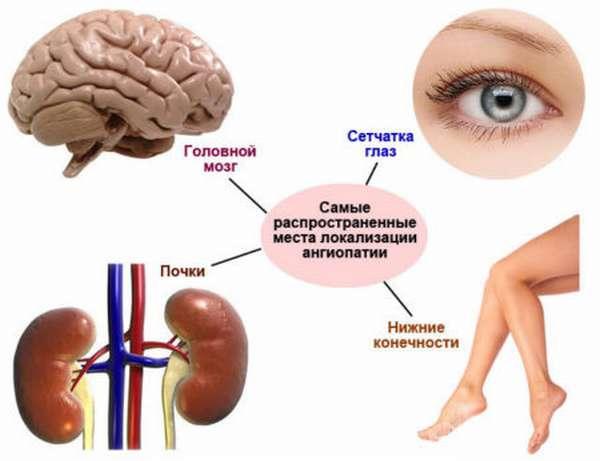 Причины возникновения ангиопатии сосудов головного мозга, ее разновидности