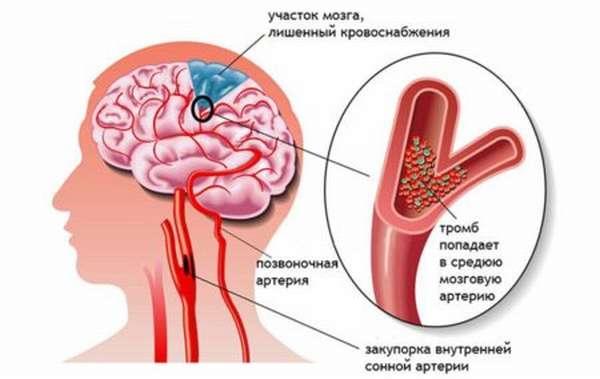 Какой должна быть норма длительности кровотечения, методы определения и как лечить патологию?