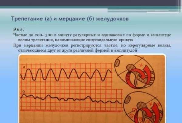 Особенности фибрилляции желудочков сердца, отличия и причины появления