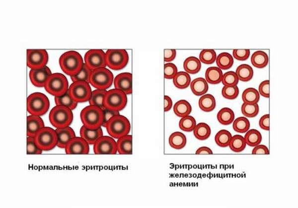Причины появления пониженного или повышенного гемоглобина и эритроцитов в крови, методы диагностики и терапии