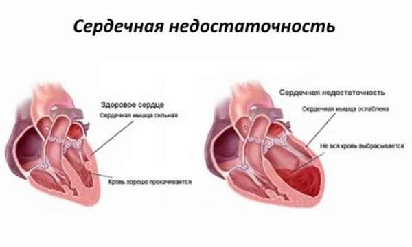 Что необходимо знать о воспалительных заболеваниях сердца каждому человеку?