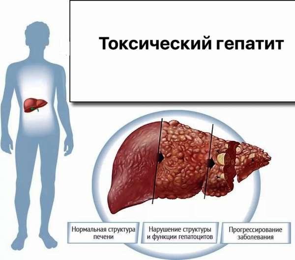 Интоксикация печени: симптомы и лечение