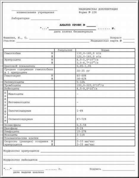 Показатели развернутого анализа крови: расшифровка у взрослых, нормы в таблицах