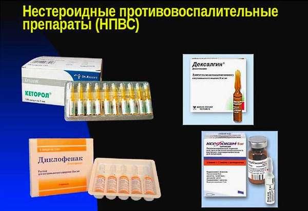Нестероидные противовоспалительные препараты при остеоартрозе