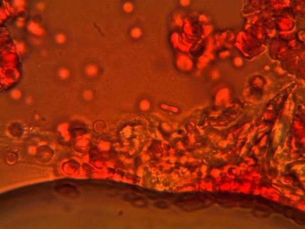 Основные функции нейтрофилов. Стадии развития защитных клеток