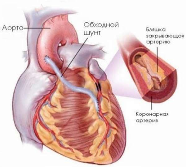 Симптомы, признаки, лечение и профилактика стенокардии покоя