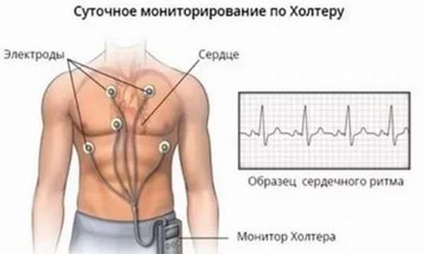 Чем отличаются показания аппарата ЭКГ при нагрузке, от показаний в состоянии покоя?