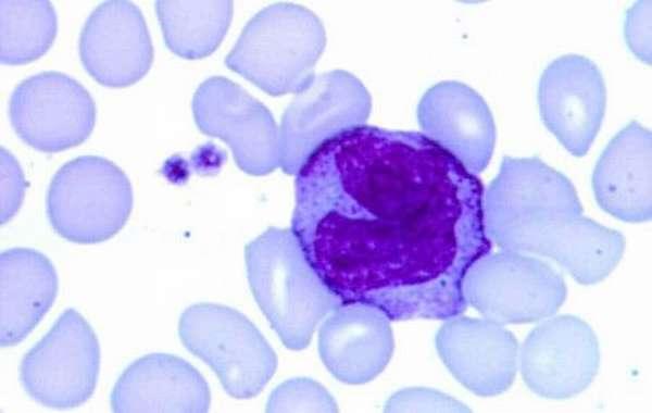 Какие должны быть нормы лейкоцитов в крови здорового ребенка, подростка и взрослого человека?