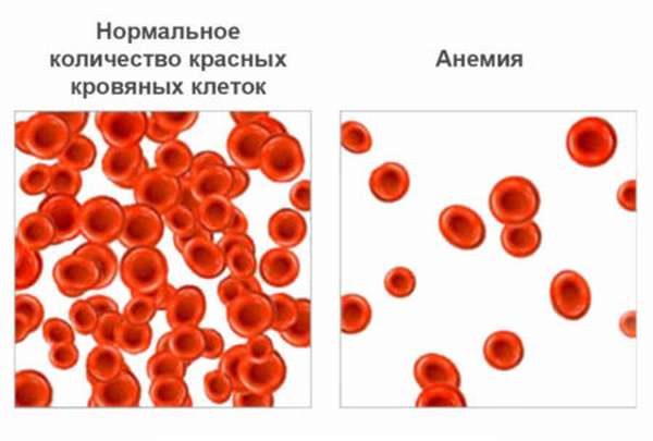 Насколько опасно повышение тромбоцитов в организме человека?