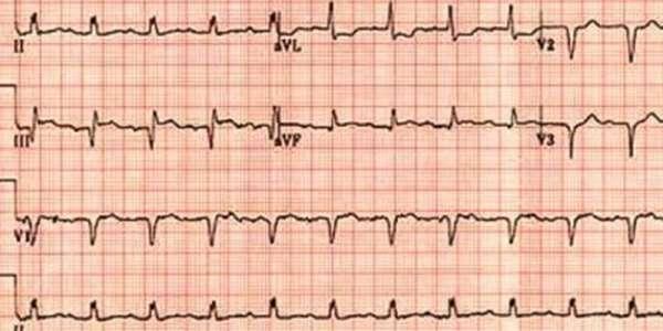 Что показывают данные, полученные на ЭКГ, показания к проведению диагностики