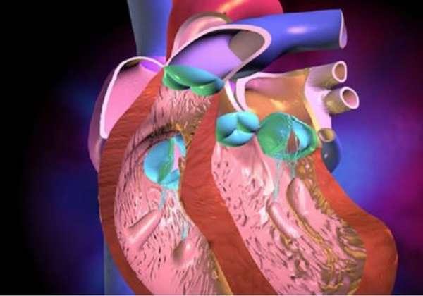 Причины, симптомы и типы желудочковой экстрасистолии по Лауну и Вольфу