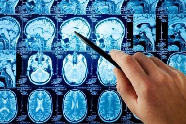 Прогноз восстановления зрения после перенесенного инсульта, другие нарушения и терапия