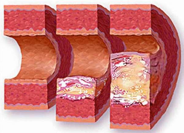Что необходимо знать о нестенозирующем атеросклерозе артерий нижних конечностей, признаки и симптомы
