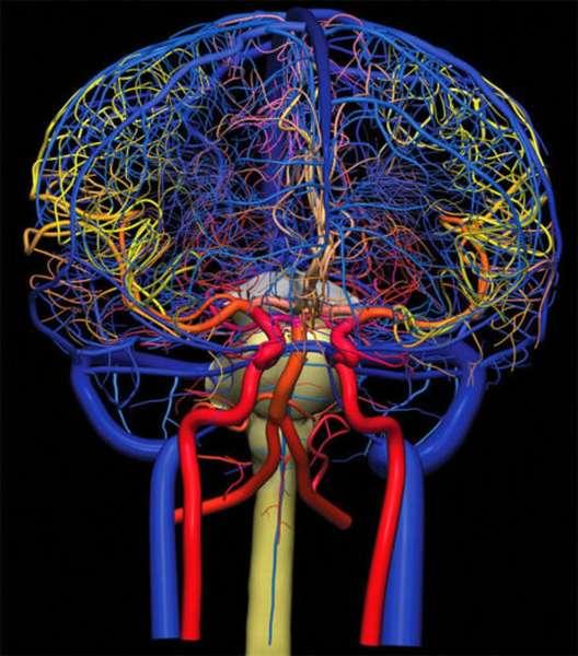 Причины появления бляшек в сосудах, признаки атеросклероза головного мозга, симптомы и диагностика