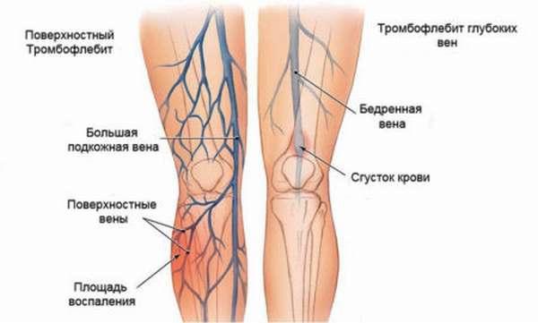 В чем преимущества УЗДГ сосудов на ногах по сравнению с другими методами