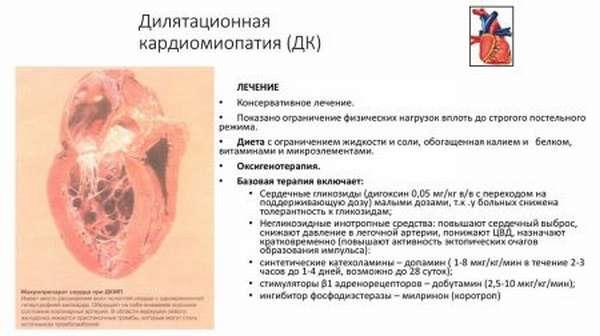 Симптомы кардиопатии, типы патологии и характеристики, методы диагностики и лечения