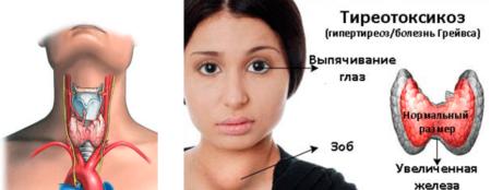 Показания к назначению анализов на гормоны щитовидной железы, нормы у женщин и отклонения