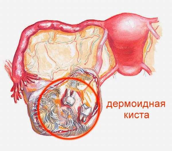 Дермоидные кисты