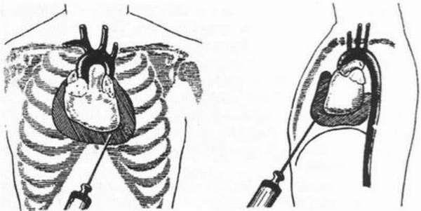 Особенности пункции перикарда, и возможные противопоказания к проведению процедуры