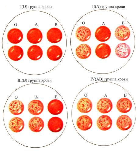 Определение происхождения и эволюции групп крови методами популяционной генетики среди различных национальностей