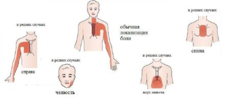 Боль в сердце, тошнота и кружится голова: похожие симптомы различных патологий