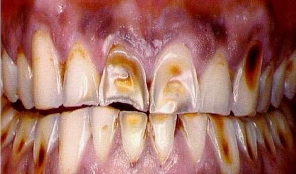 Болезни зубов некариозного происхождения фото с описанием у взрослых