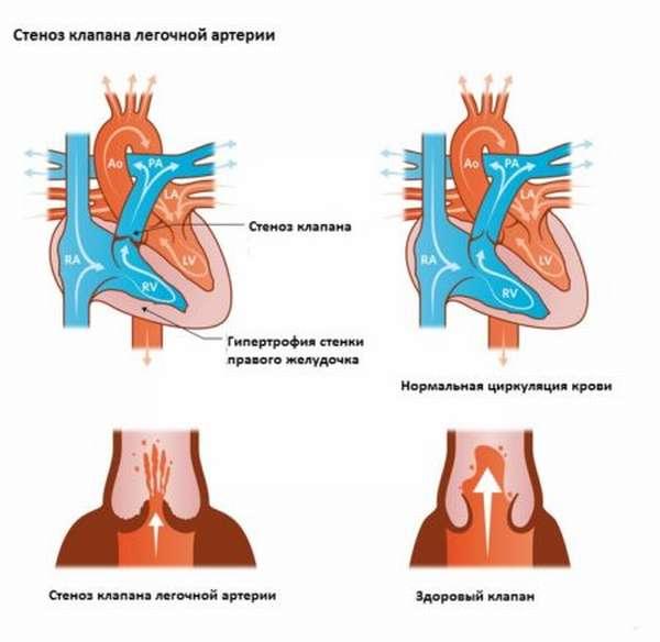 Симптоматика и терапия стеноза легочной артерии, причины развития