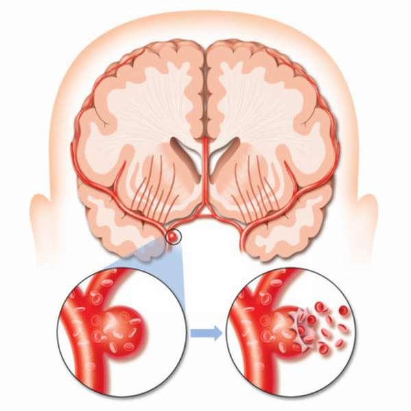 Основные первые признаки возникновения инсульта у женщин: типичные и нетипичные симптомы