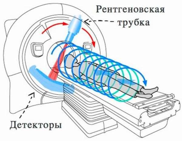 Характеристика мультиспиральной компьютерной томографии, ее преимущества и назначение