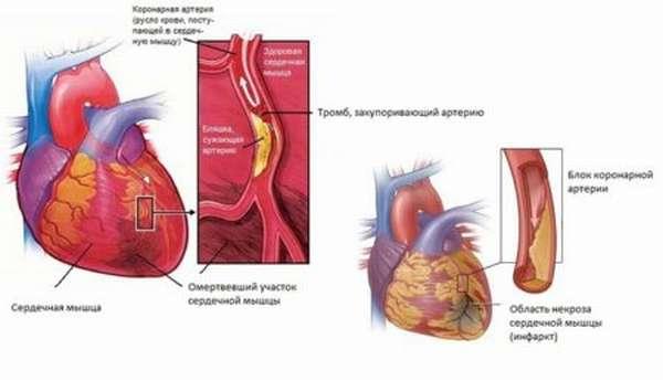 Причины ноющей боли в сердце с одышкой и без нее, диагностика болезней