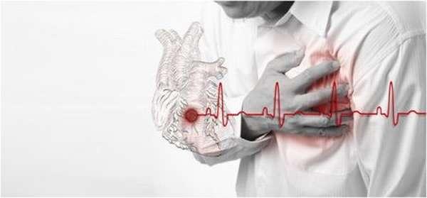 Причины появления кашля после инфаркта миокарда, лечение, выбор медикаментов