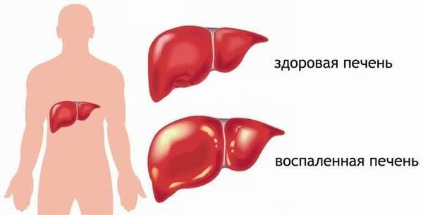 Острое и хроническое отравление тубазидом