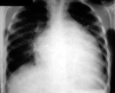 Симптомы гипертрофии левого желудочка, причины патологии и лечение