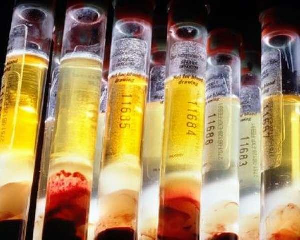 Анализ крови: за сколько часов нельзя есть перед тем как сдавать биоматериал?