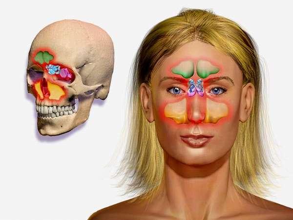 Киста гайморовой пазухи - лечение без операции, совет лор врачей