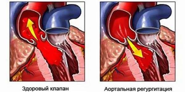 Почему боль в сердце может отдавать в левую лопатку? Причины и лечение