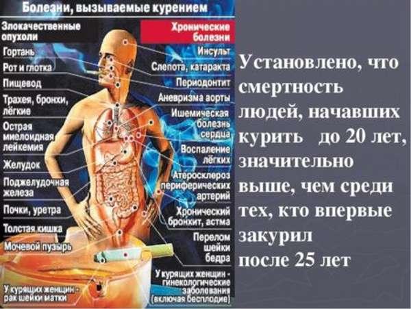 Разновидности инсультов, основные симптомы и первые признаки у мужчин и женщин до и после 50 лет