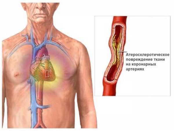 Симптомы, причины и методы лечения ранней постинфарктной стенокардии
