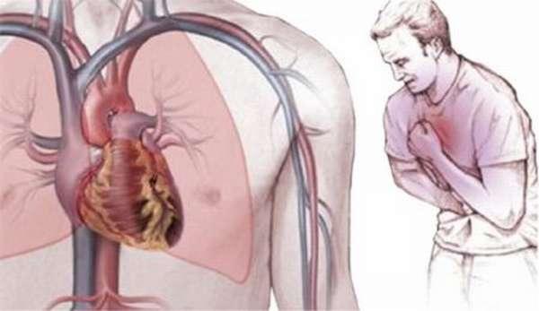 Насколько опасной может быть колющая боль в области сердца, возникающая при вдохе?