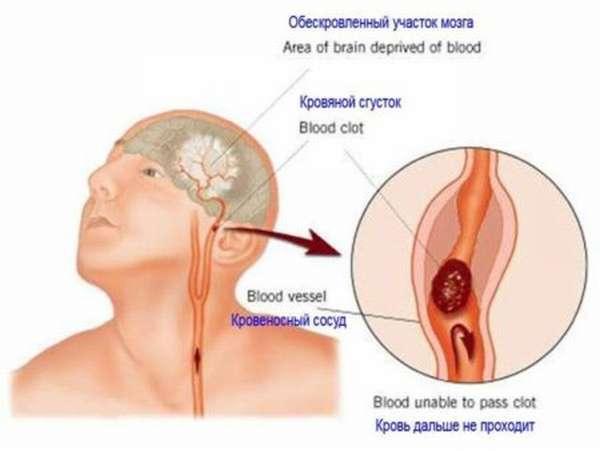 Что влияет на развитие инфаркта головного мозга человека и методы профилактики