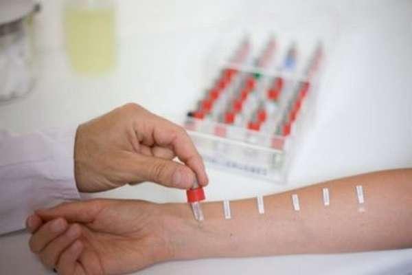 Как производится анализ на аллергены у взрослых, кожные пробы и метод иммуноблоттинга